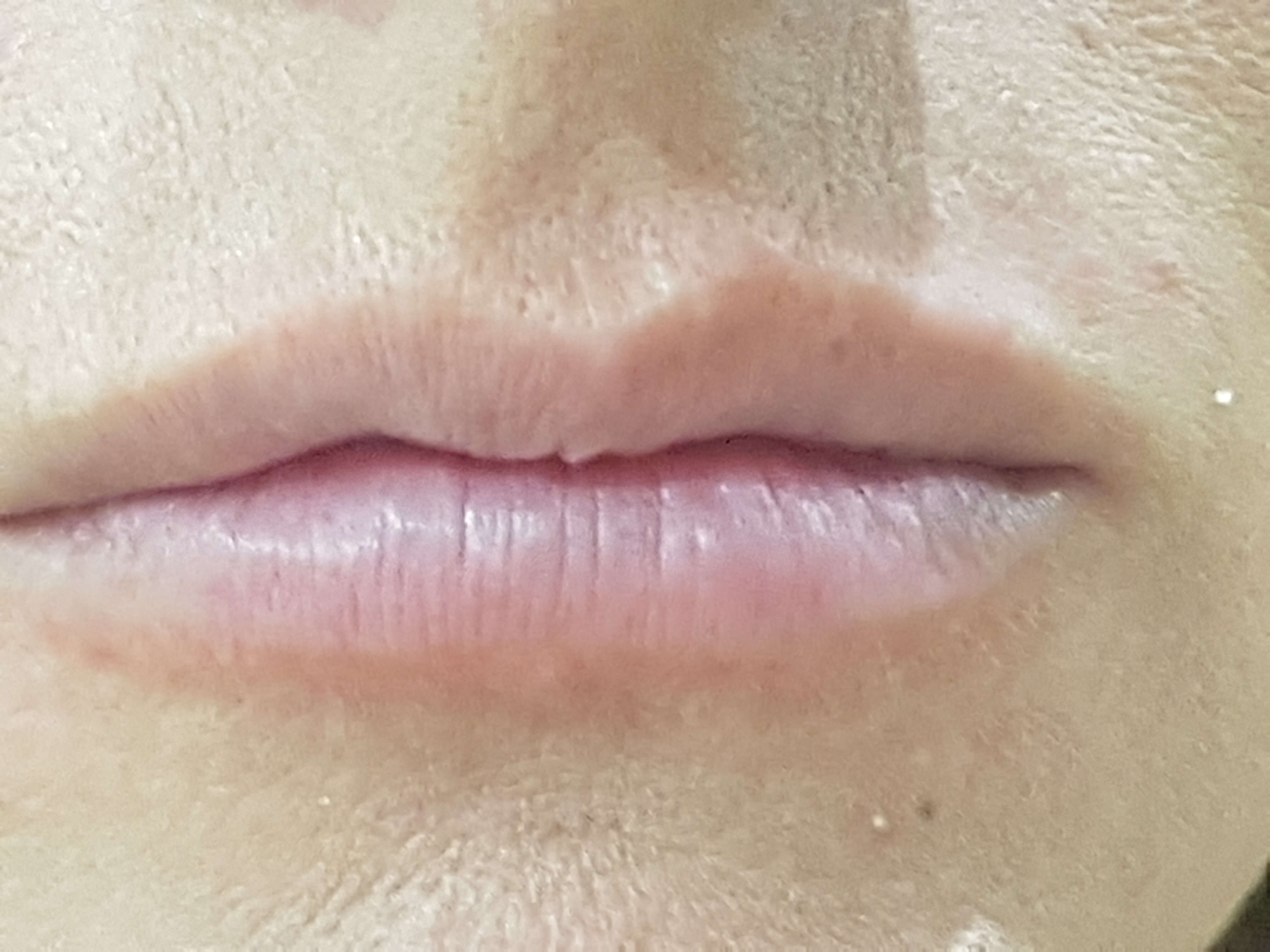 Lip Fillers Milton Keynes - Lip Enhancement Milton Keynes
