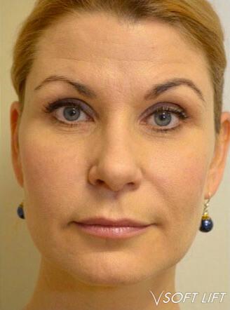 Non-Surgical Face Lift Milton Keynes - PDO Thread Lift   R3 Aesthetics