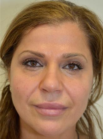 Non-Surgical Face Lift Milton Keynes - PDO Thread Lift | R3 Aesthetics