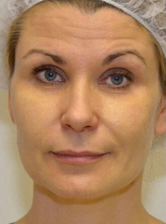 Non-Surgical Face Lift Milton Keynes - PDO Thread Lift | R3